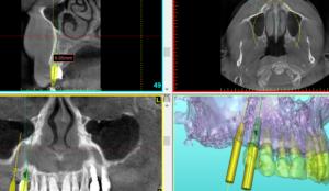 Planning an implant resstoration