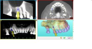Planning a single implant